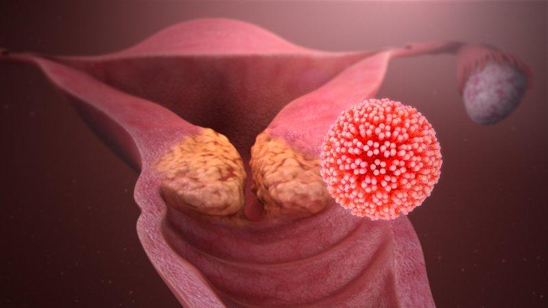 Trasmissione papilloma virus verruche. Înțelesul
