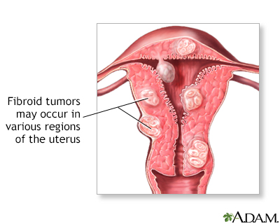 endometrial cancer or fibroids