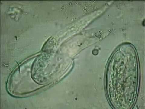 Enterobius vermicularis, Larvas de oxyuris vermicularis