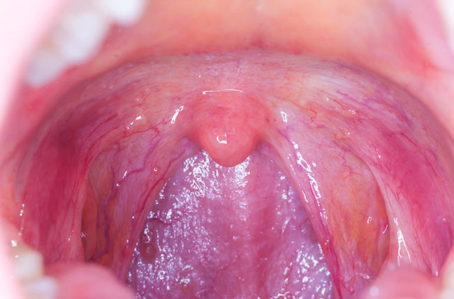 where does hpv throat cancer spread