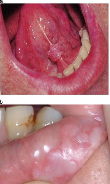 human papillomavirus warts in mouth