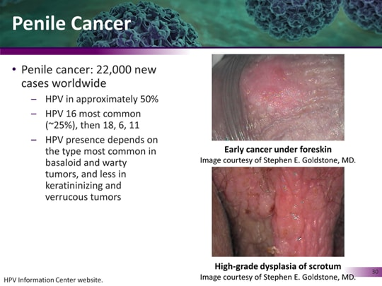 Hpv warts and penile cancer - coboramlaprima.ro - High risk hpv penile cancer