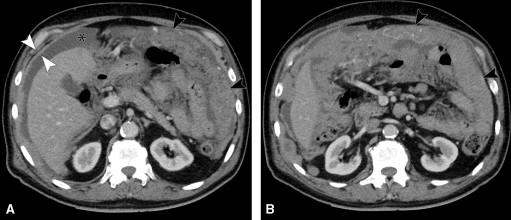Peritoneal cancer ct scan - coboramlaprima.ro
