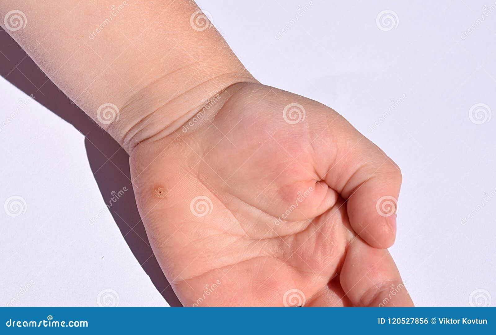warts on hands child lo pelin noromectin