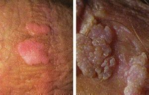 hpv genital verruca
