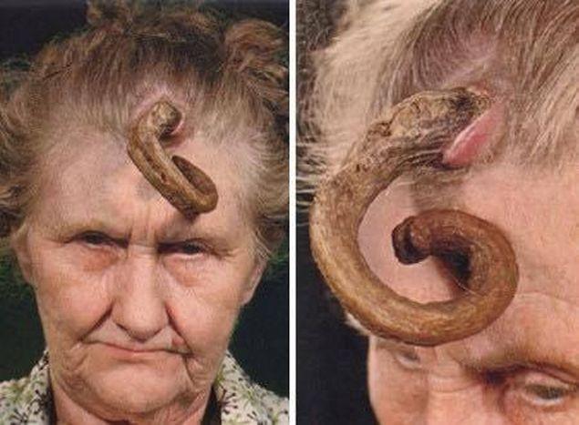 """Oamenii de știință au descoperit un vierme cu trei sexe și cu """"marsupiu"""""""