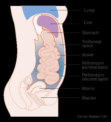 cancer in abdominal tissue