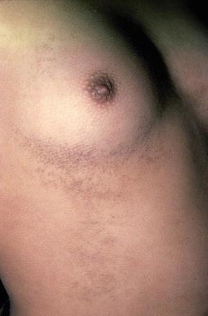 Skin papillomatosis symptoms, Papillomatosis and skin