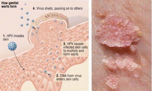 papillomavirus infection peau viermi și produse derivate din viermi