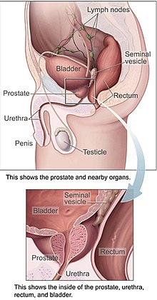 cancer de prostata ultima etapa vărsături de viermi pentru bebeluși