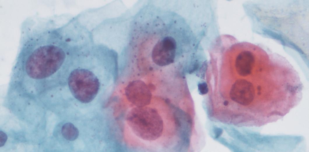 l homme et le papillomavirus