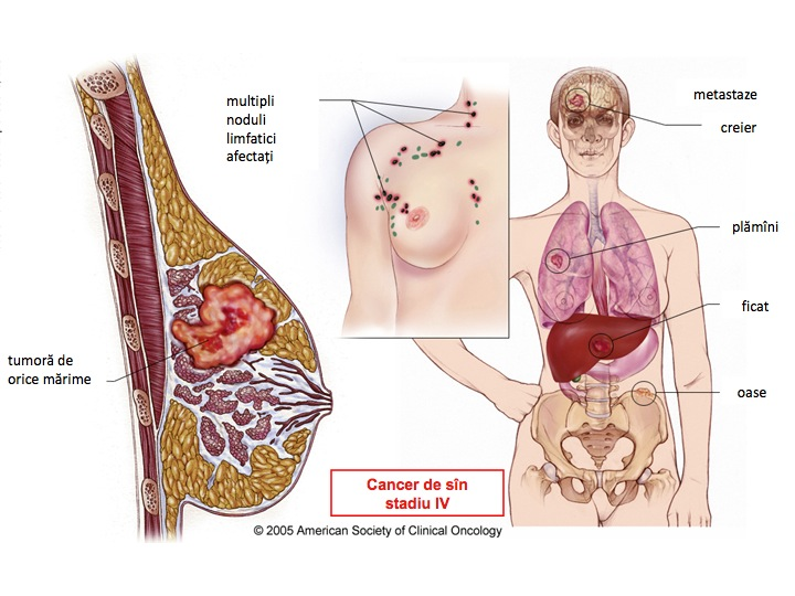 cancer limfatic ce inseamna papilomele pielii