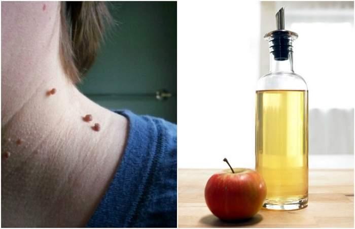 Metode de aplicare a uleiului de ricin din papilom și revizuiri ale tratamentului