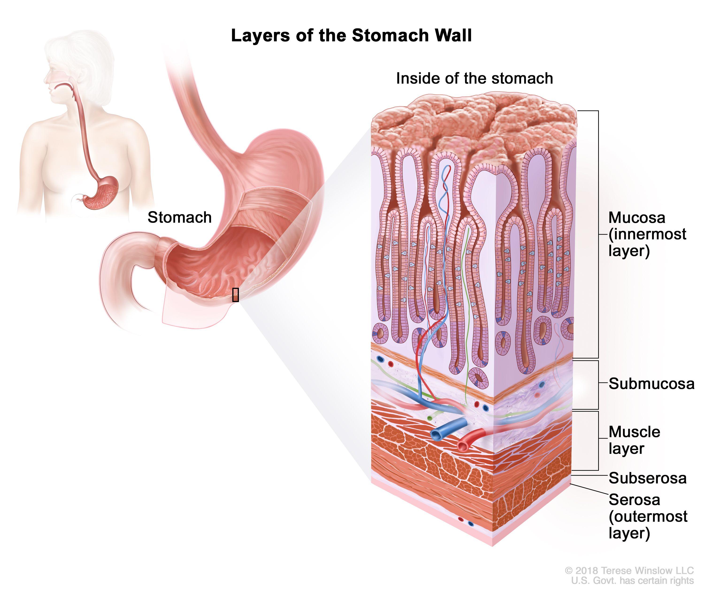 Abdominal cancer cure, Abdominal cancer cure