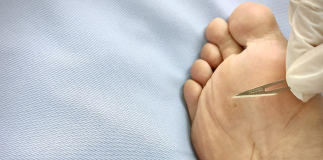 skin papilloma icd 9