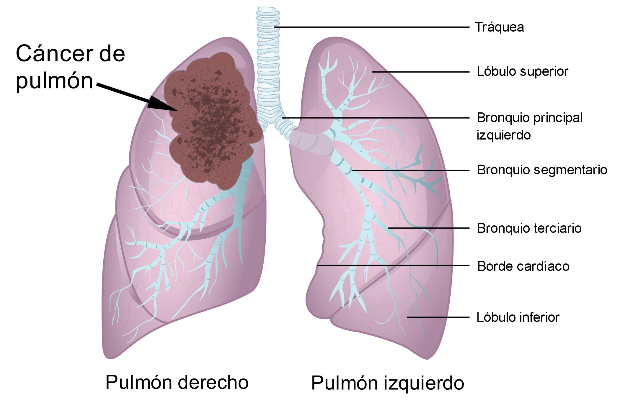 Cancer de prostata fase 2, Hpv lingua contagio