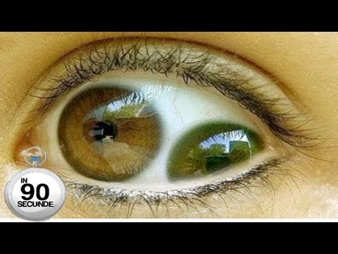 tratamentul viermilor de ochi