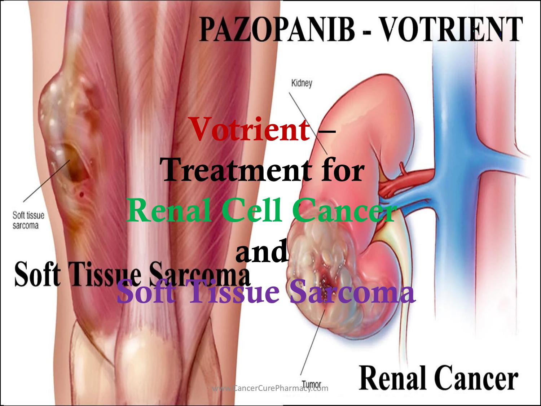 sarcoma cancer soft tissue hpv quadrivalente gardasil