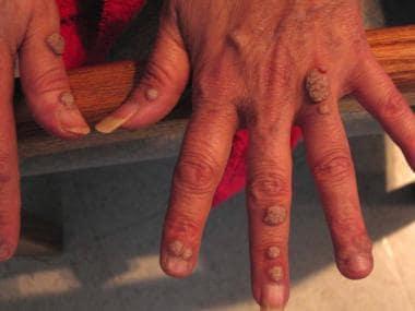 condyloma acuminata hand
