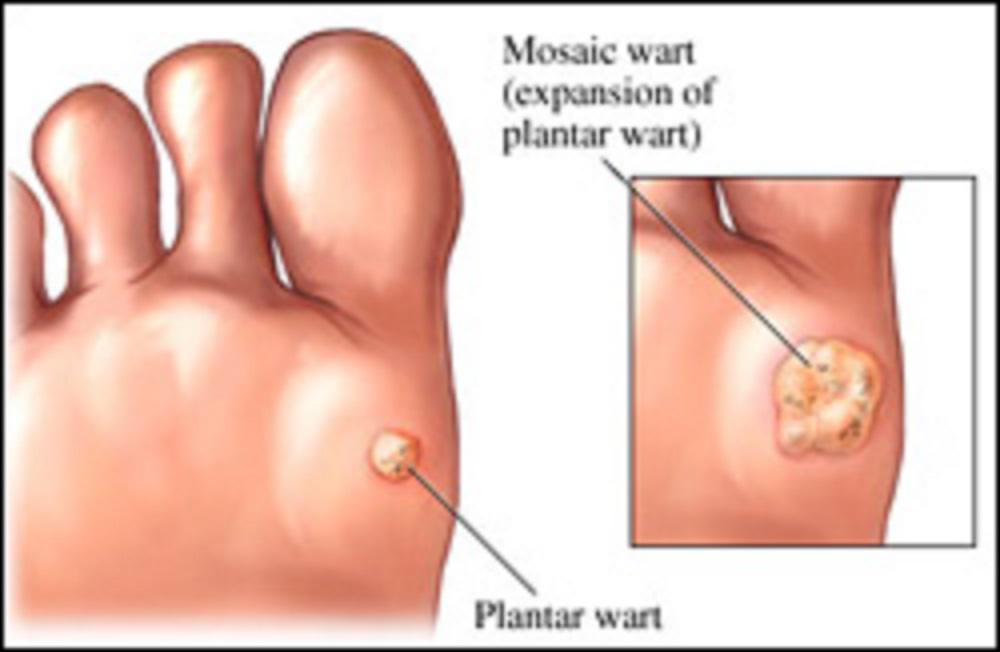 warts on foot multiplying