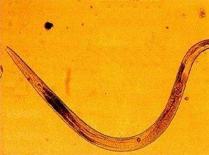hpv oireet nainen paraziti helminti