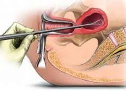 Eliminarea polipului cervical: metode, conducere, rezultat - Lipom September