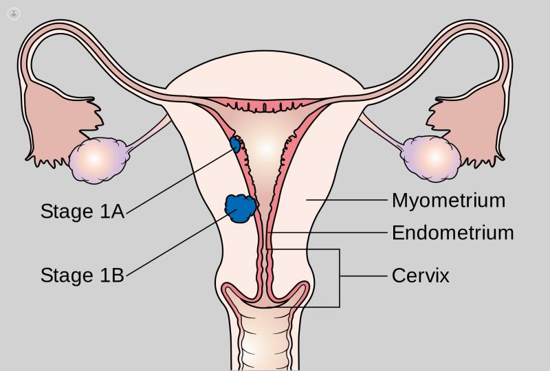 que es cancer ginecologico