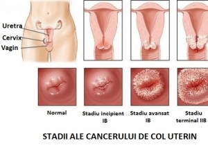 Cancerul ovarian - coboramlaprima.ro