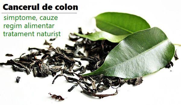 Cancerul de Colon » LaurusMedical - hemoroizi, varice, dermatologie, gastroenterologie
