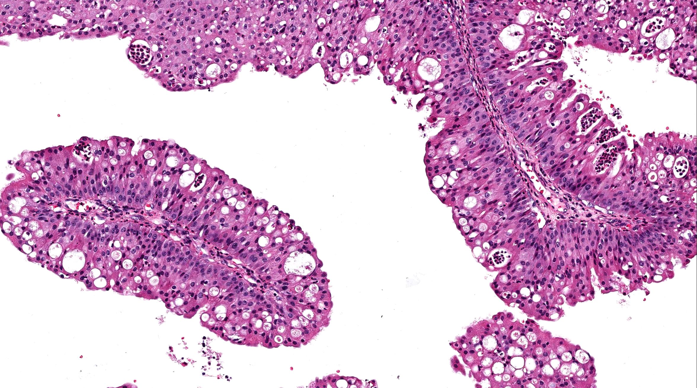 Medicamente pentru tratamentul HPV. Infecţia cu HPV: ce tratament este eficient?