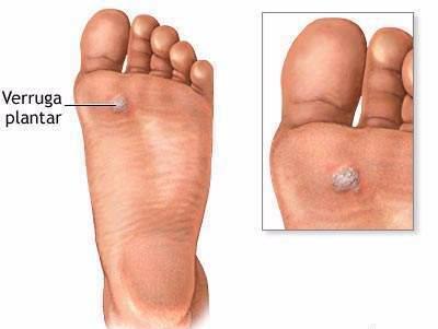 Virus de papiloma humano provoca verrugas, Peritoneal cancer stage 4