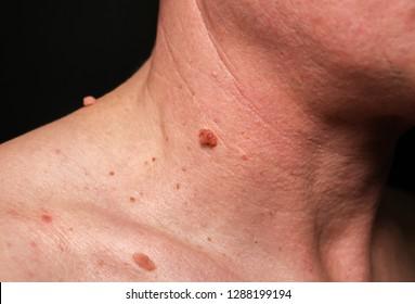 squamous papilloma head giardia behandeling mens