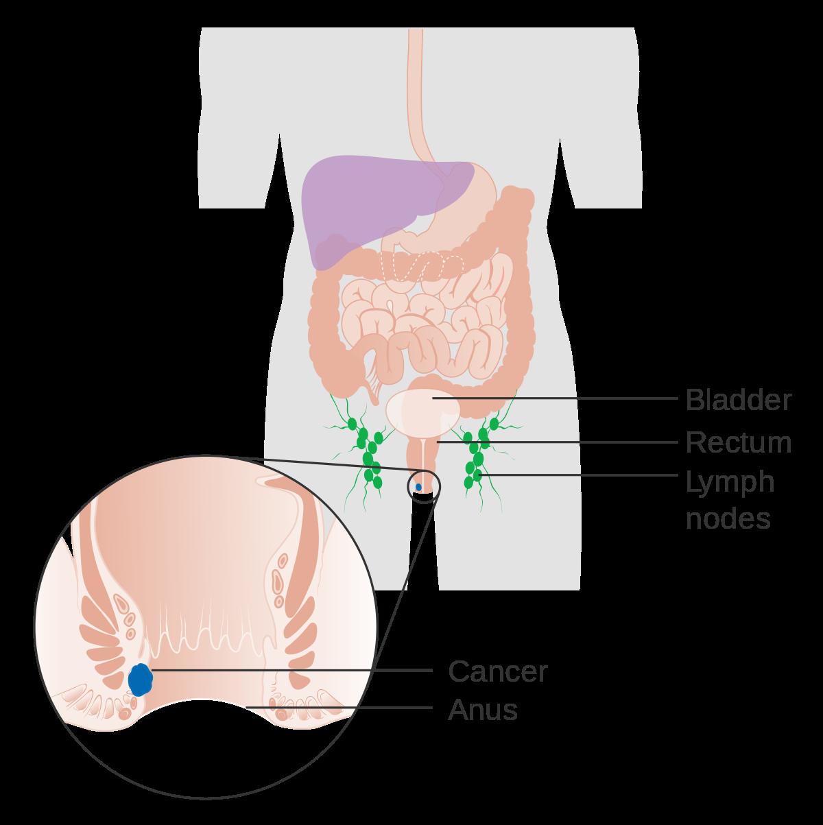 Squamous papilloma pathology. Rectal squamous papilloma pathology