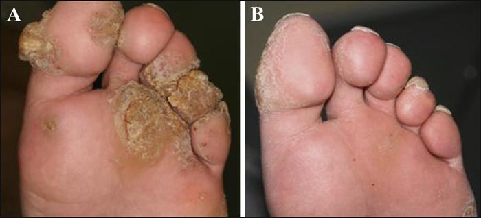 Warts treatment by dermatologist. Wart treatment dermatologist