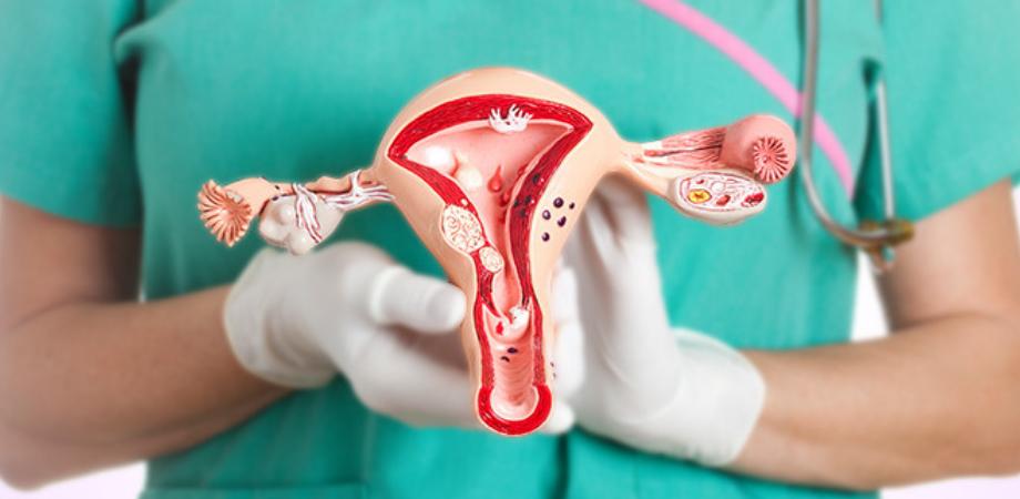 inlaturarea uterului