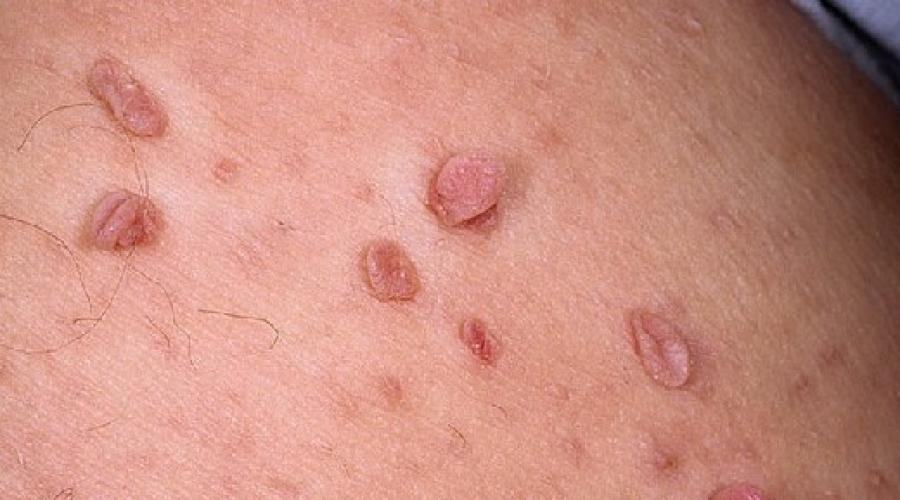 papilomele atârnate provoacă tratament