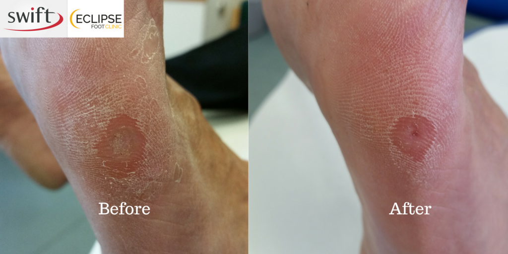 wart treatment silver nitrate