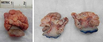 squamous papilloma on lip