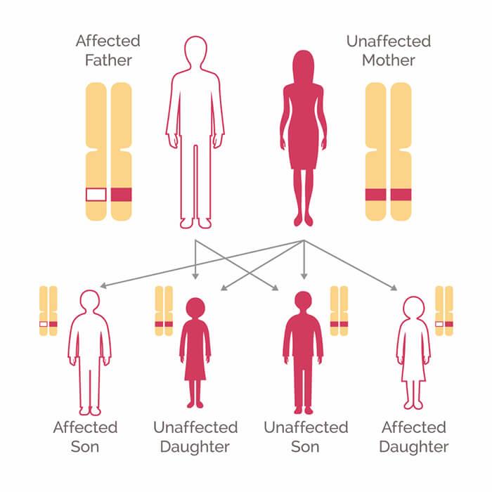 Testul Genetic pentru cancerul de plamani - My Body Guide