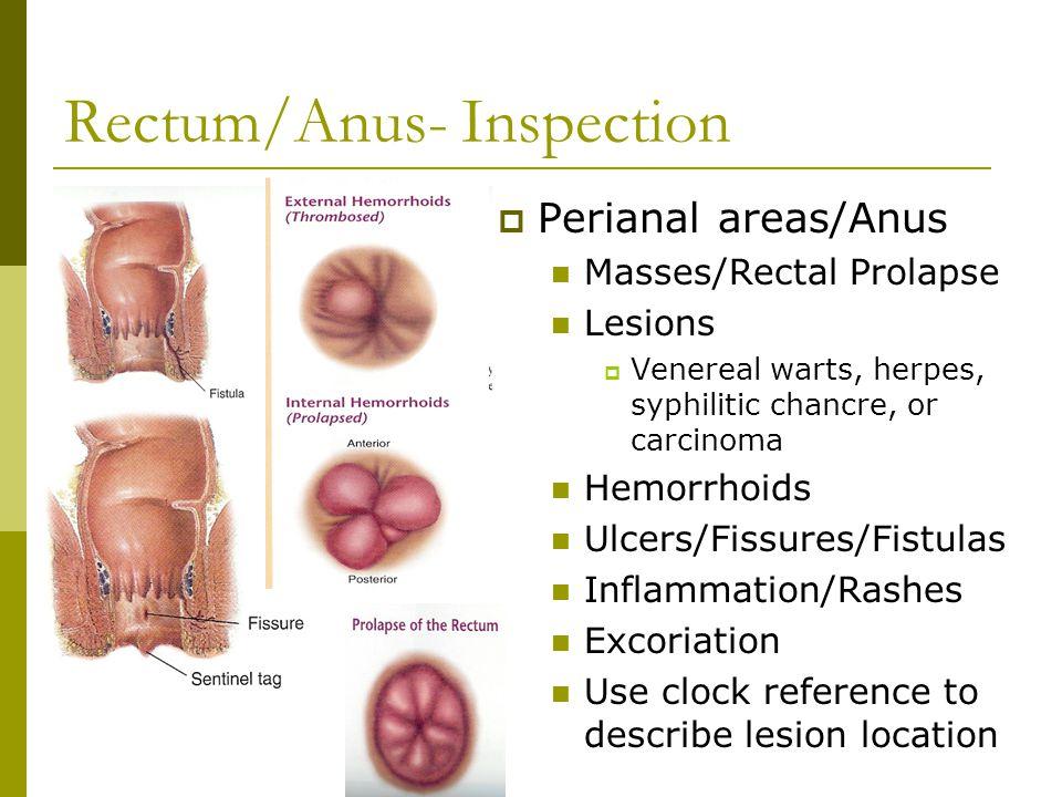 Hpv cure genital warts