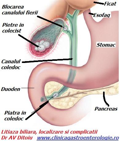 Paraziții sunt simptome și tratamentul splinei umane