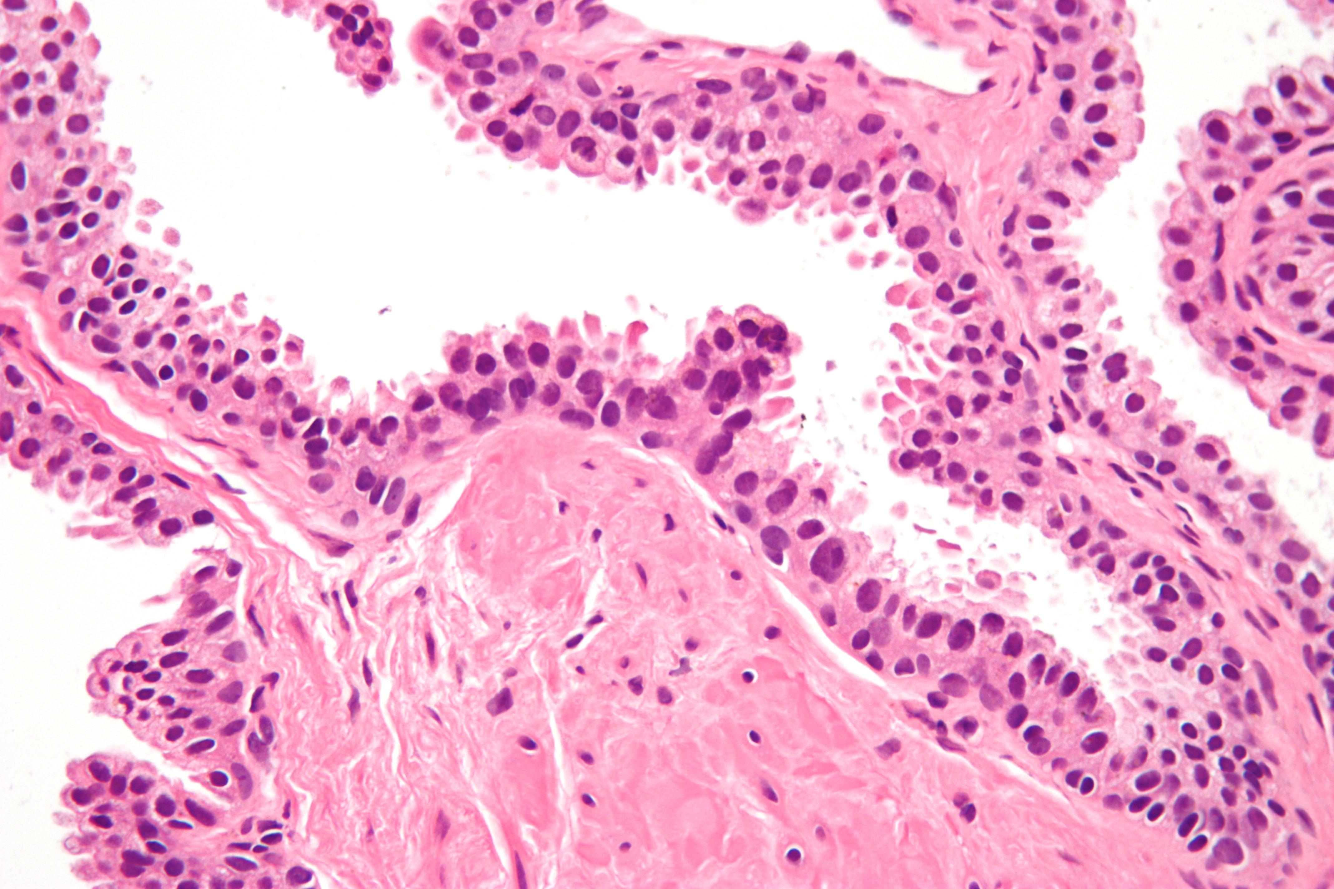 Papillary lesion icd 9 code Vestibular papillomatosis stinging