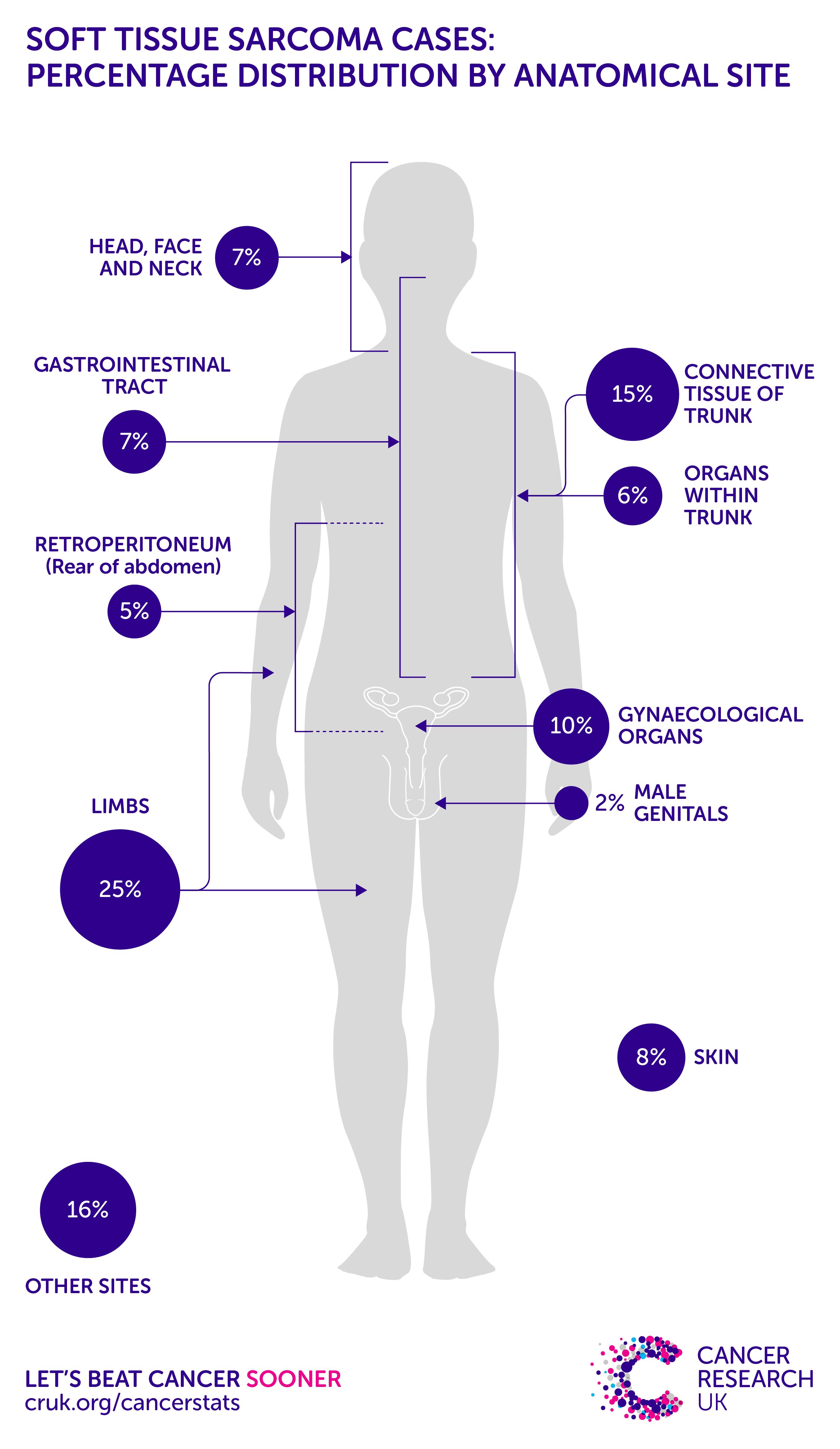 sarcoma cancer soft tissue din ce negi genitale apar la femei