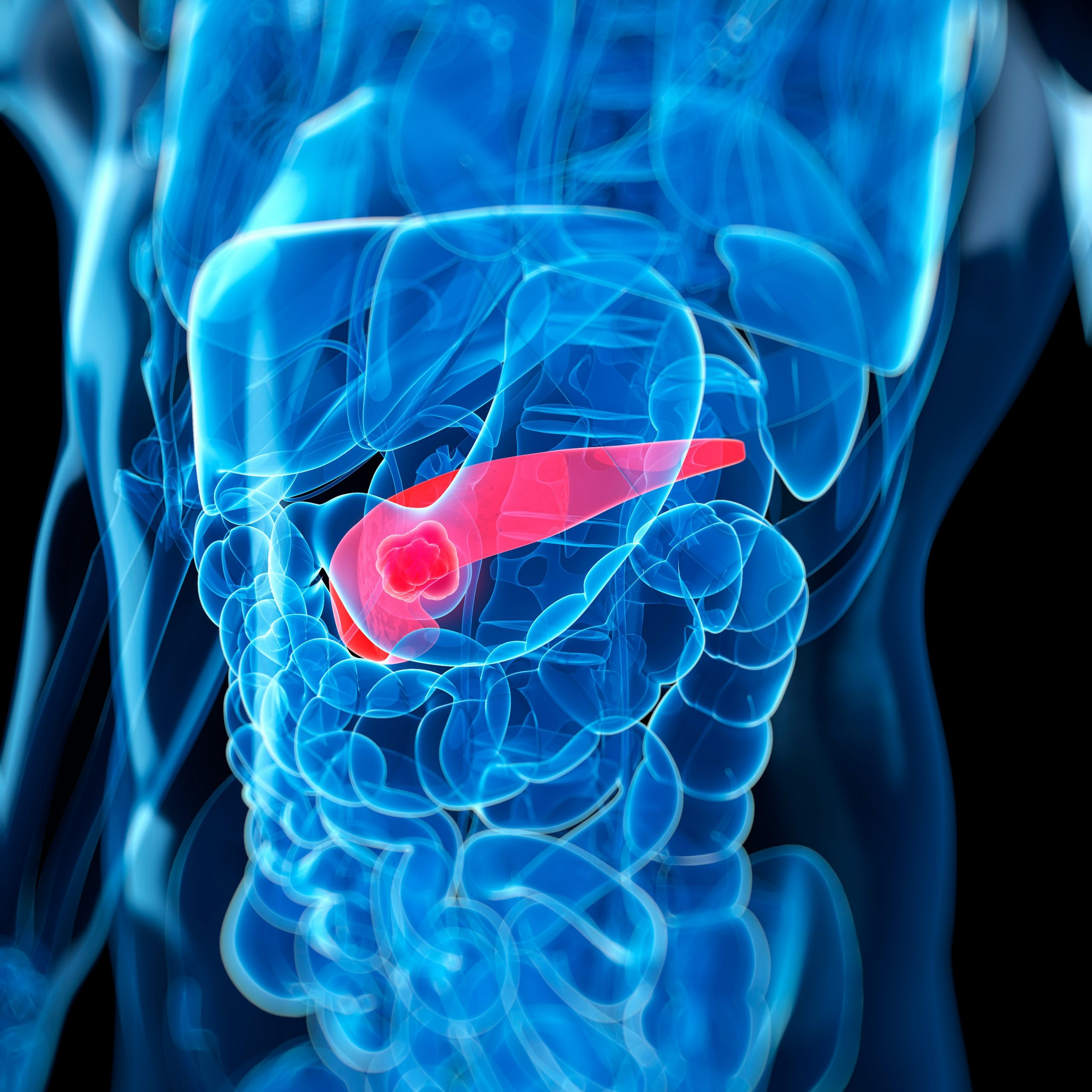 pancreatic cancer gas cancer colon guidelines