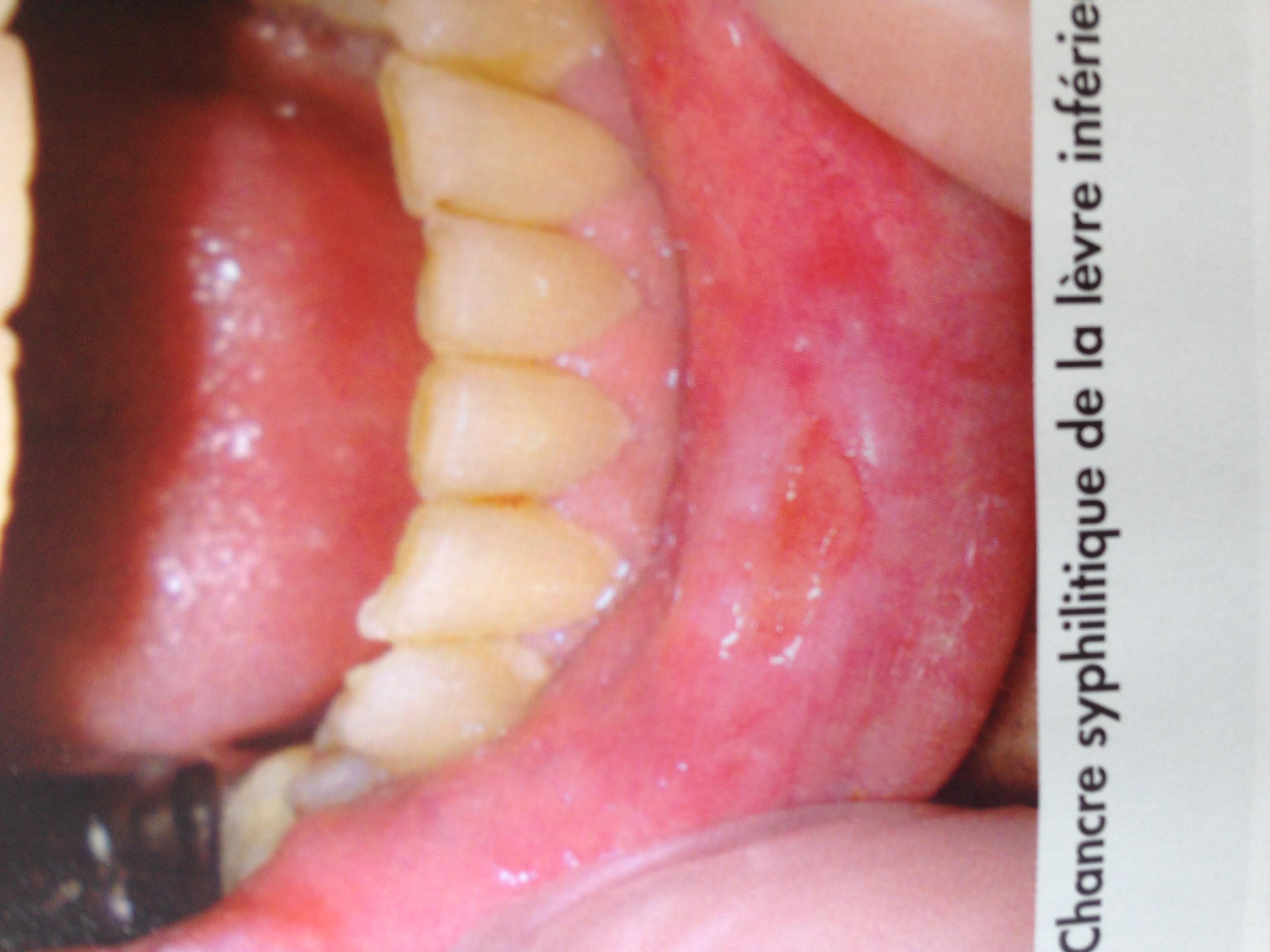 papillomavirus bouche image que significa lsil hpv