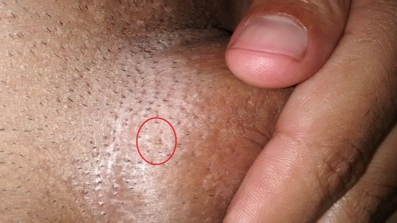 mâncărime în anus cu negi genitale