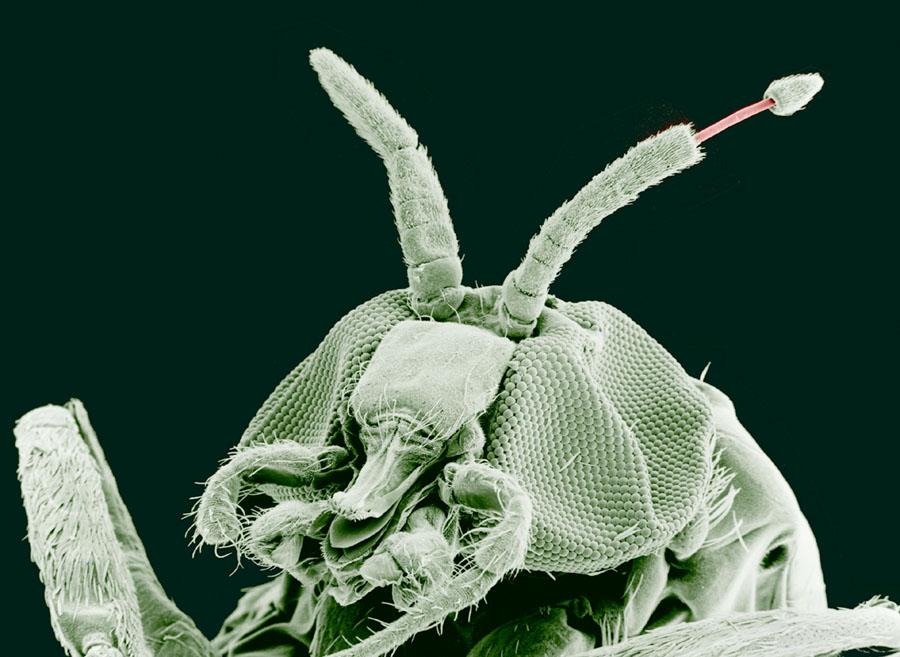 Paraziti la gene, Cauze si factori de risc