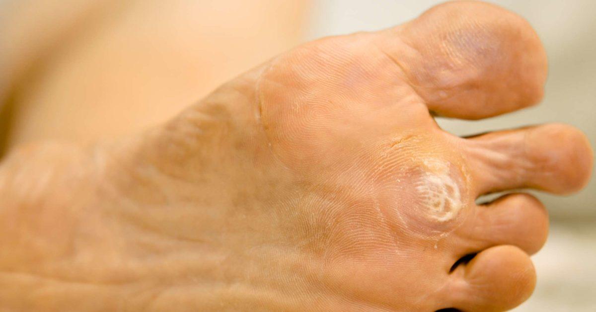 Definition de papillome - Oxiuros wurmer