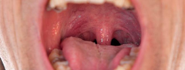 papiloma boca sintomas