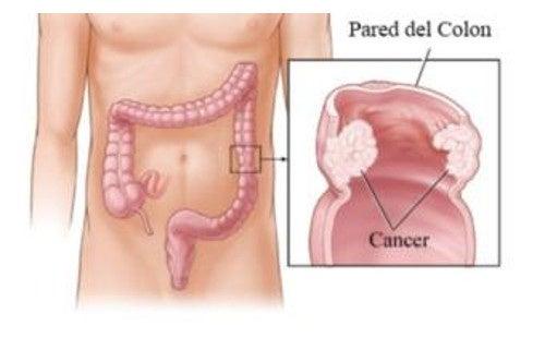 tratamentul simptomelor parazitului intestinal medicamente pentru giardia și paraziți